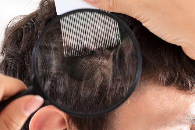 Kopfhaut untersuchen
