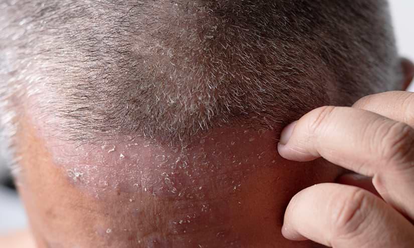 Schuppenflechte Kopfhaut und Stirn
